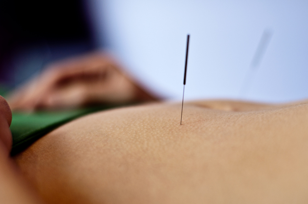 acupuncture1 Acupuncture   Alternative Medicine