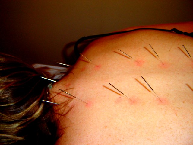 acupuncture8 Acupuncture   Alternative Medicine