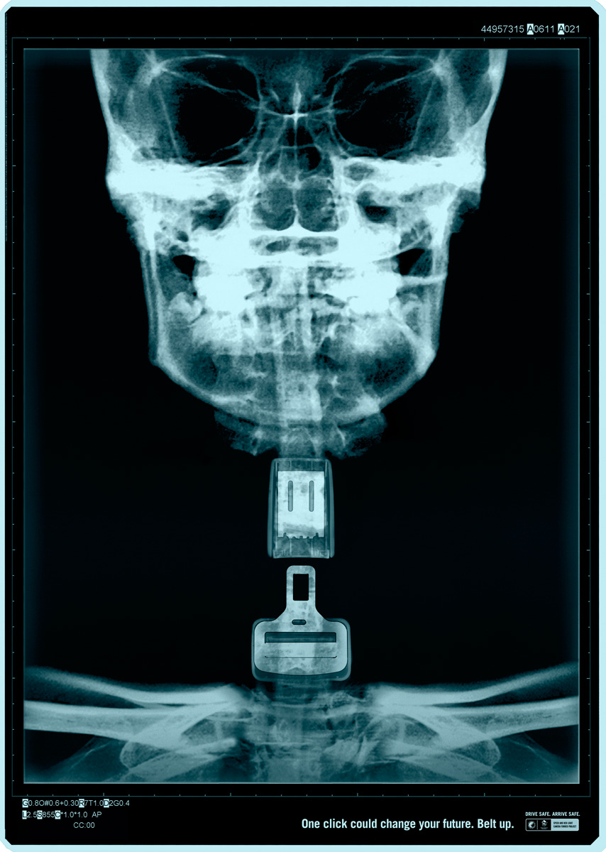 x ray1 One click Could Safe Your Life