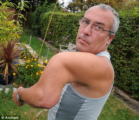Man with arm bent out of shape c...