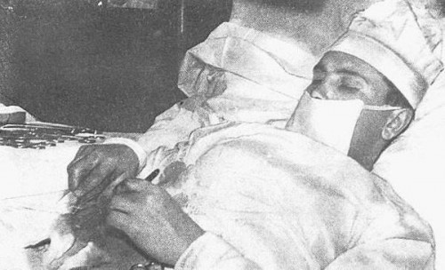 self surgery 500x304 Leonid Rogozov removed his own appendix