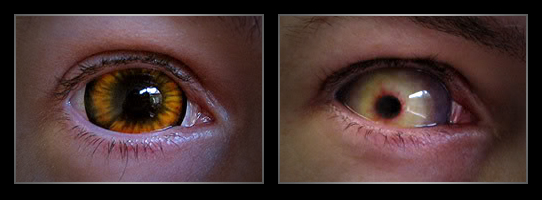 coloured contact lenses1 Fresh Look With Coloured Contact Lenses