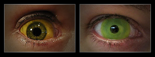 coloured contact lenses3 Fresh Look With Coloured Contact Lenses