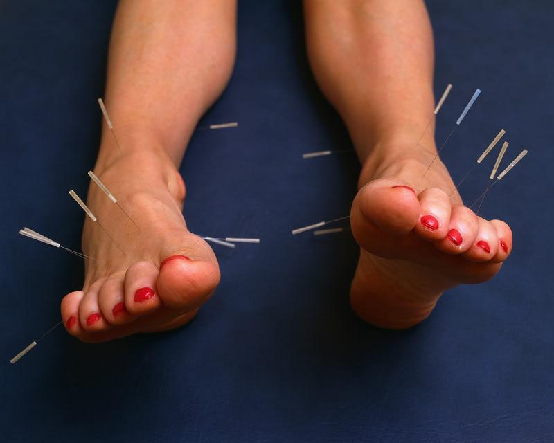 acupuncture4 Acupuncture   Alternative Medicine