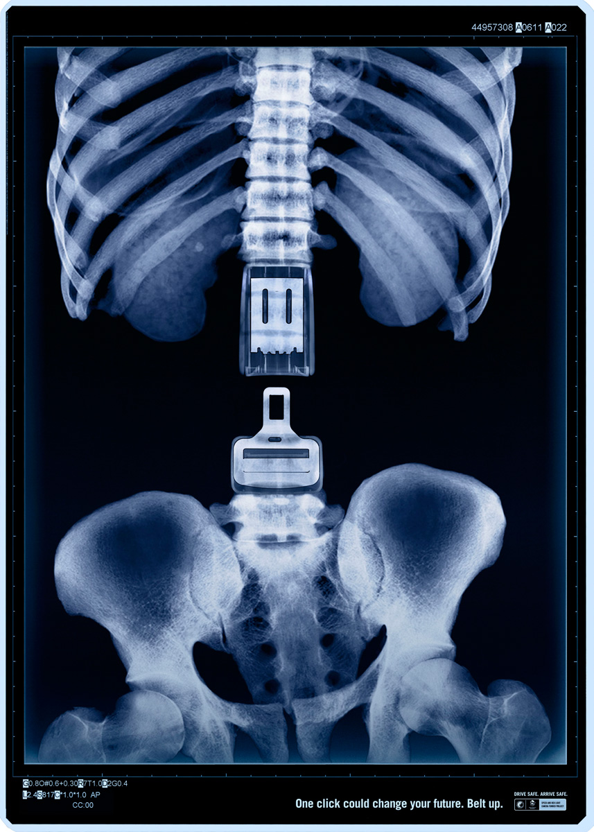 x ray One click Could Safe Your Life