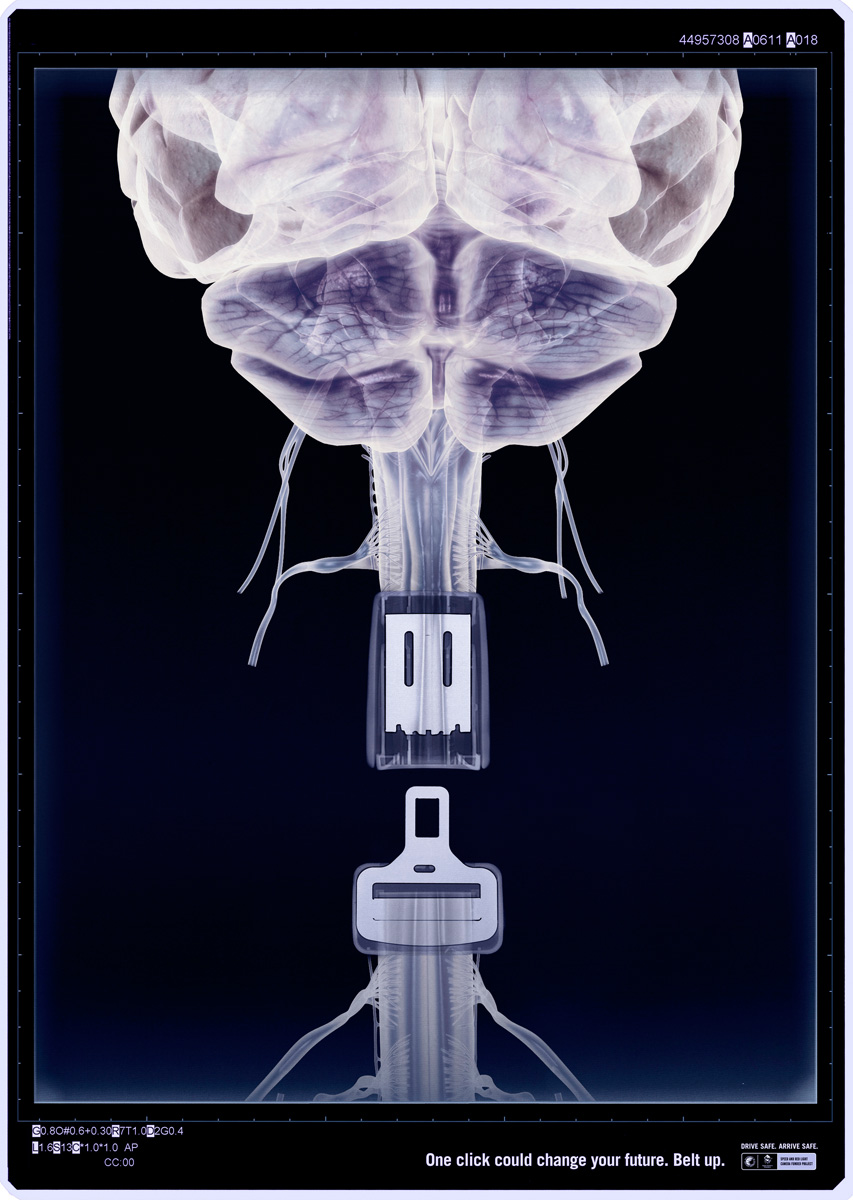 x ray2 One click Could Safe Your Life